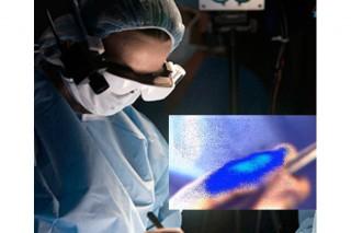 Специальные очки покажут раковые клетки