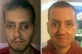 В Британии 3D-принтер помог восстановить череп пациенту