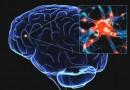 Спорт замедляет процессы старения головного мозга